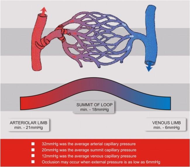 Capillary Occlusion Pressure