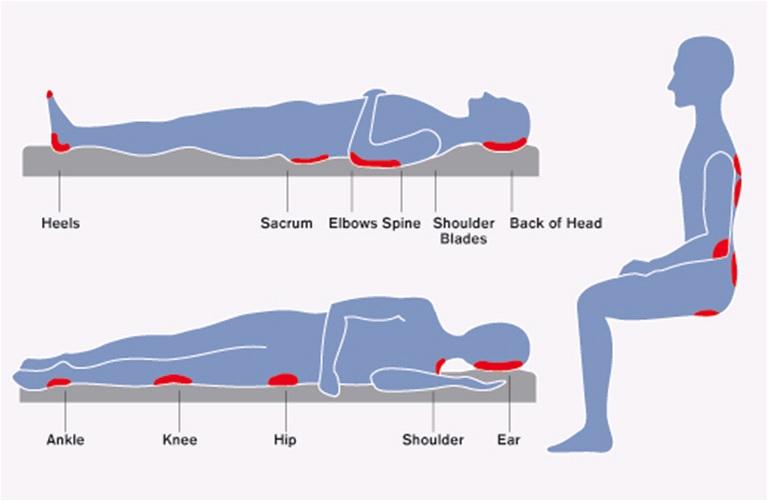 under foot diagram clinical knowledge centre : pegasus foot diagram pressure ulcer #7
